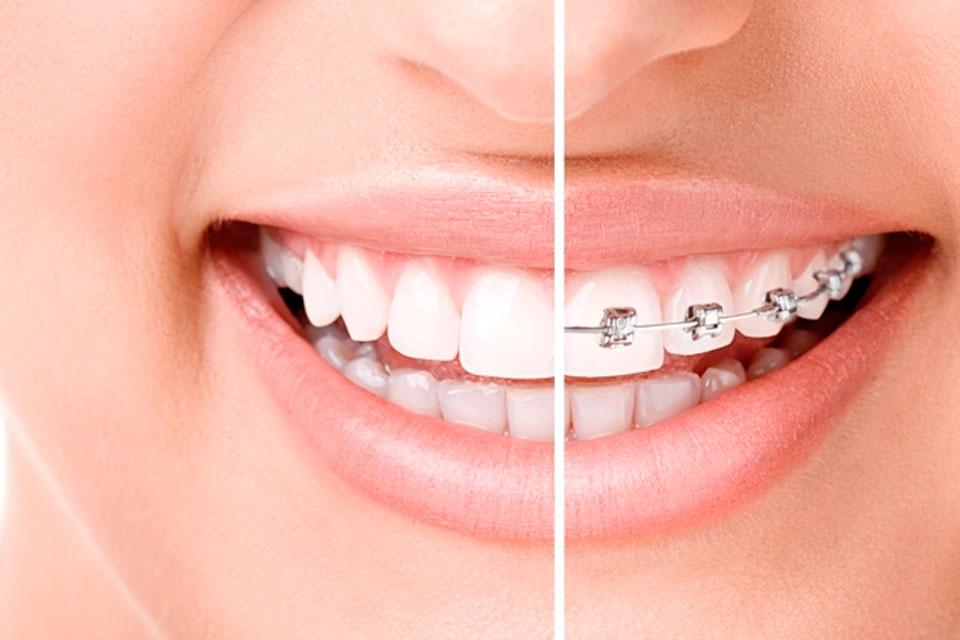 ortodoncia02